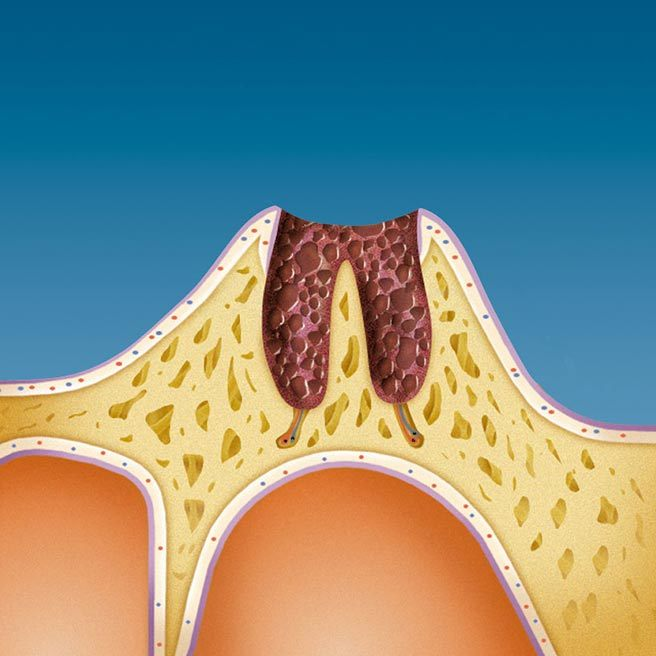 Result of the loss of a tooth is a deep wound in your jaw   Protefix