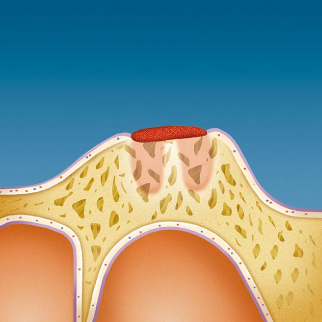 Wound covered by a protective mucous membrane   Protefix