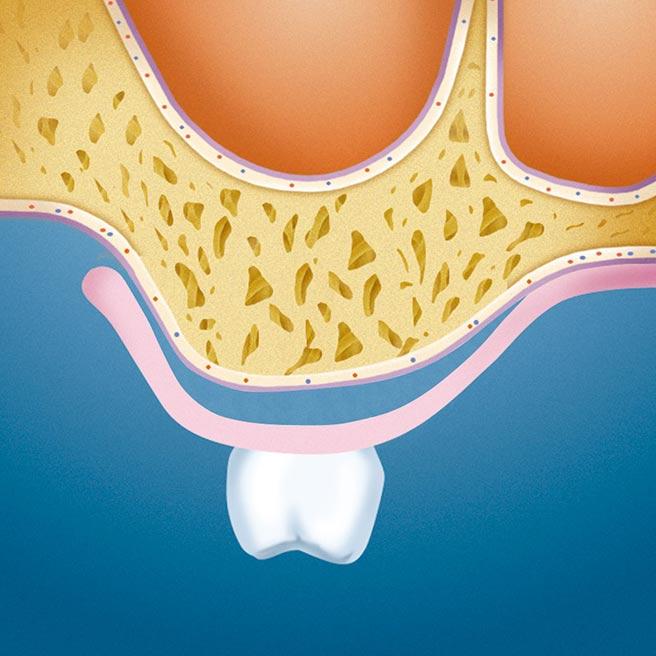 Denture of the interim period (Cavities between jaw ridge and interim denture) | Protefix